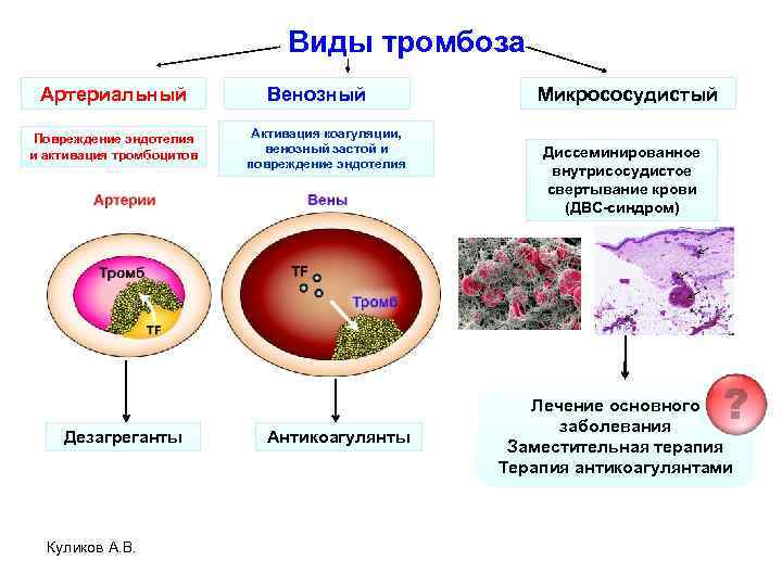 Виды тромбоза Артериальный Повреждение эндотелия и активация тромбоцитов Дезагреганты Куликов А. В. Венозный Активация