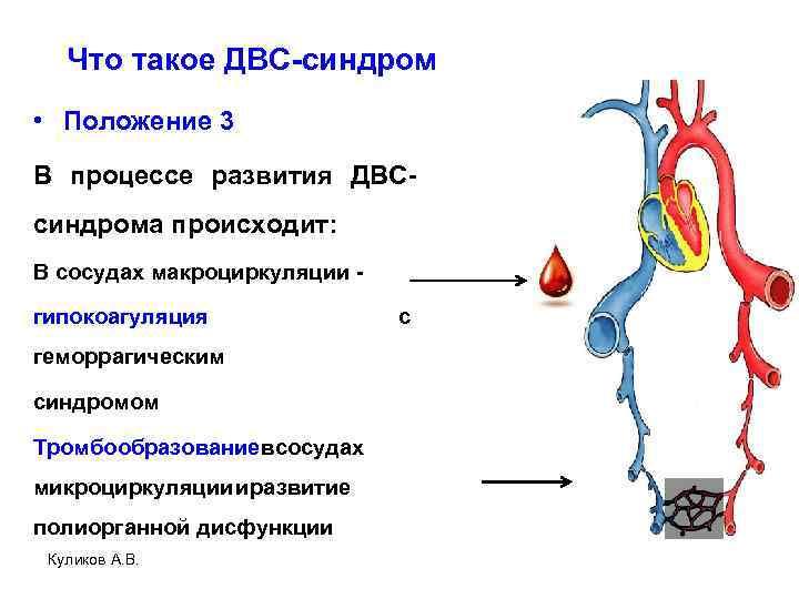 Что такое ДВС-синдром • Положение 3 В процессе развития ДВСсиндрома происходит: В сосудах макроциркуляции