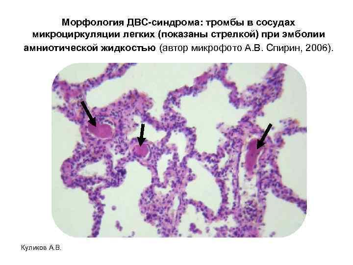 Морфология ДВС-синдрома: тромбы в сосудах микроциркуляции легких (показаны стрелкой) при эмболии амниотической жидкостью (автор