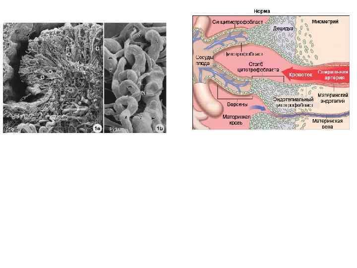 Нет адаптивной трансформации спиральных артерий