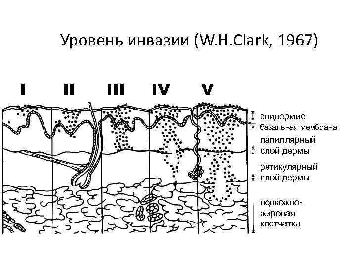 Уровень инвазии (W. H. Clark, 1967) I II IV V эпидермис базальная мембрана папиллярный