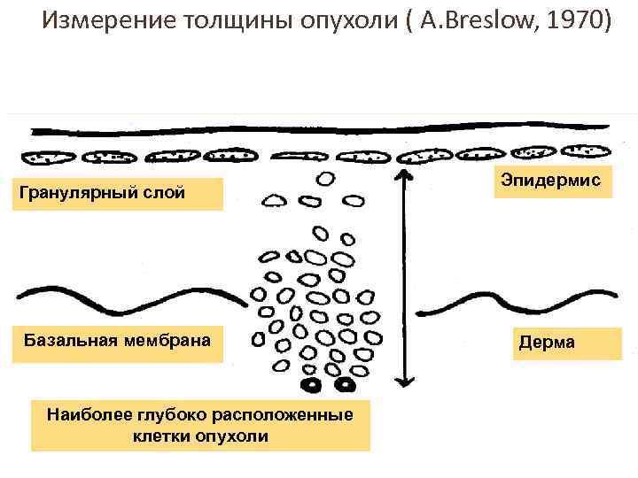 Измерение толщины опухоли ( A. Breslow, 1970) Гранулярный слой Базальная мембрана Наиболее глубоко расположенные