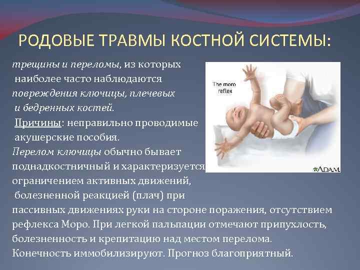 Родовая травма периферической нервной системы.