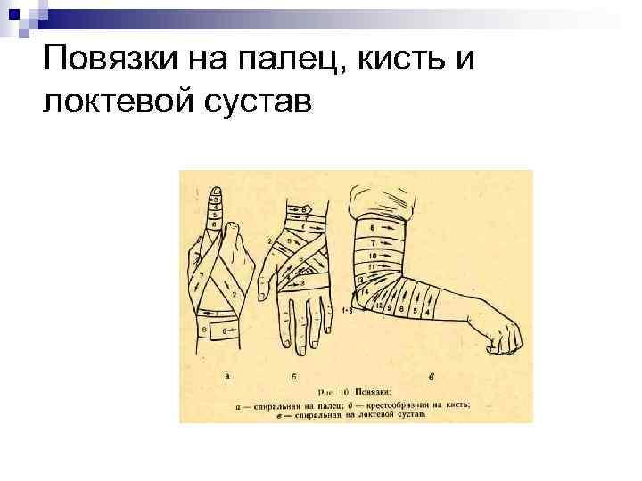 Повязки на палец, кисть и локтевой сустав