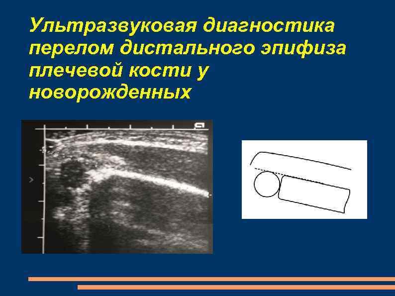 Ультразвуковая диагностика перелом дистального эпифиза плечевой кости у новорожденных