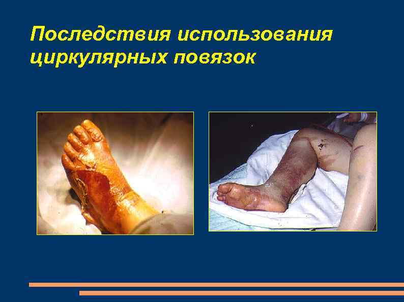 Последствия использования циркулярных повязок