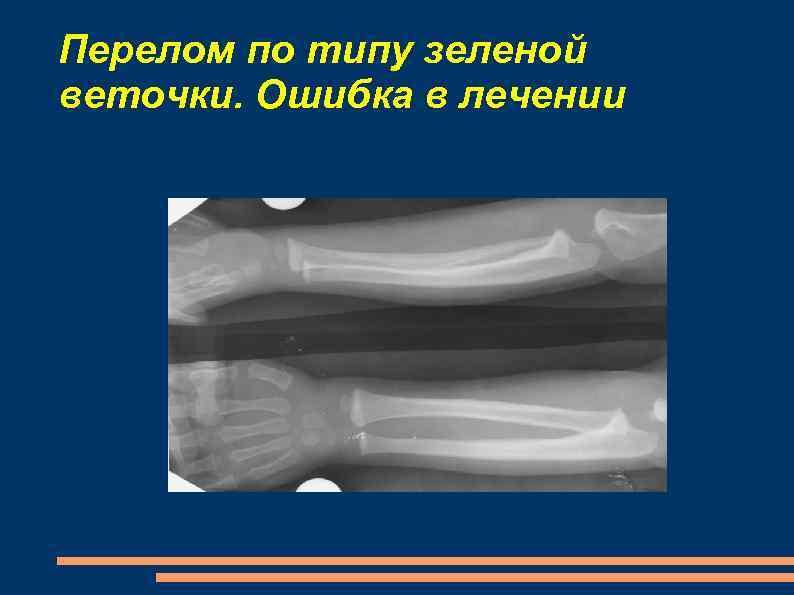 Перелом по типу зеленой веточки. Ошибка в лечении