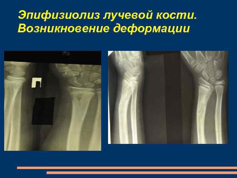 Эпифизиолиз лучевой кости. Возникновение деформации