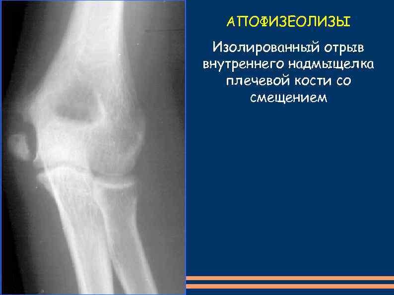 АПОФИЗЕОЛИЗЫ Изолированный отрыв внутреннего надмыщелка плечевой кости со смещением