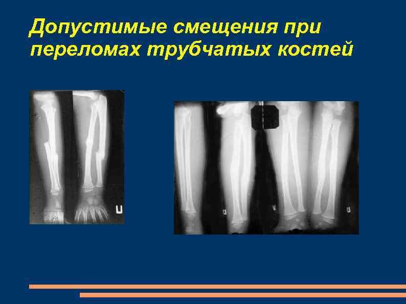 Допустимые смещения при переломах трубчатых костей