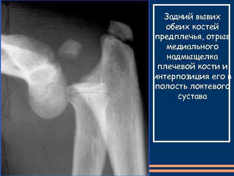 Задний вывих обеих костей предплечья, отрыв медиального надмыщелка плечевой кости и интерпозиция его в