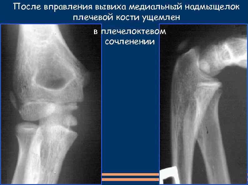 После вправления вывиха медиальный надмыщелок плечевой кости ущемлен в плечелоктевом сочленении