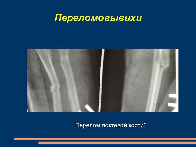 Переломовывихи Перелом локтевой кости?