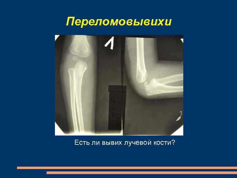 Переломовывихи Есть ли вывих лучевой кости?