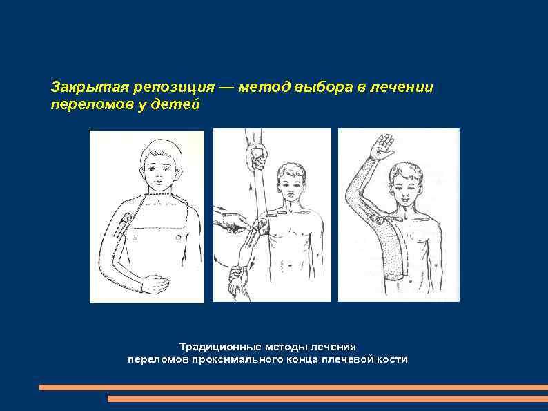 Закрытая репозиция — метод выбора в лечении переломов у детей Традиционные методы лечения переломов