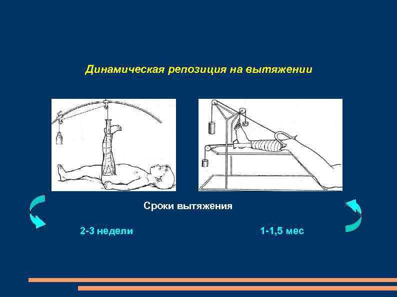 Динамическая репозиция на вытяжении Сроки вытяжения 2 -3 недели 1 -1, 5 мес