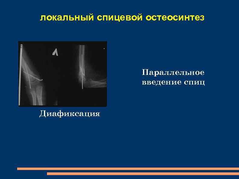 локальный спицевой остеосинтез Параллельное введение спиц Диафиксация