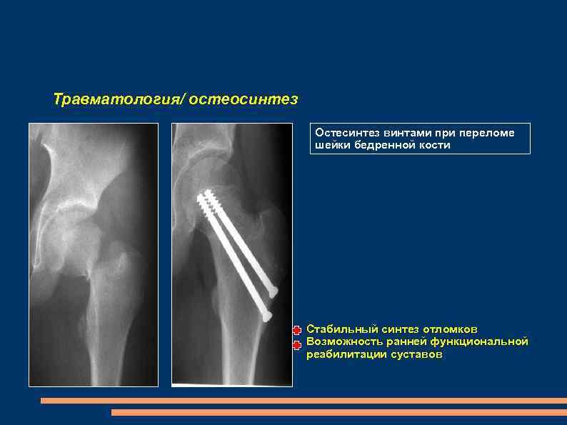 Травматология/ остеосинтез Остесинтез винтами при переломе шейки бедренной кости Стабильный синтез отломков Возможность ранней