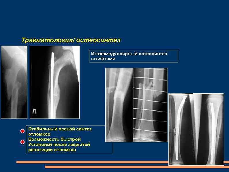 Травматология/ остеосинтез Интрамедуллярный остеосинтез штифтами Стабильный осевой синтез отломков Возможность быстрой Установки после закрытой