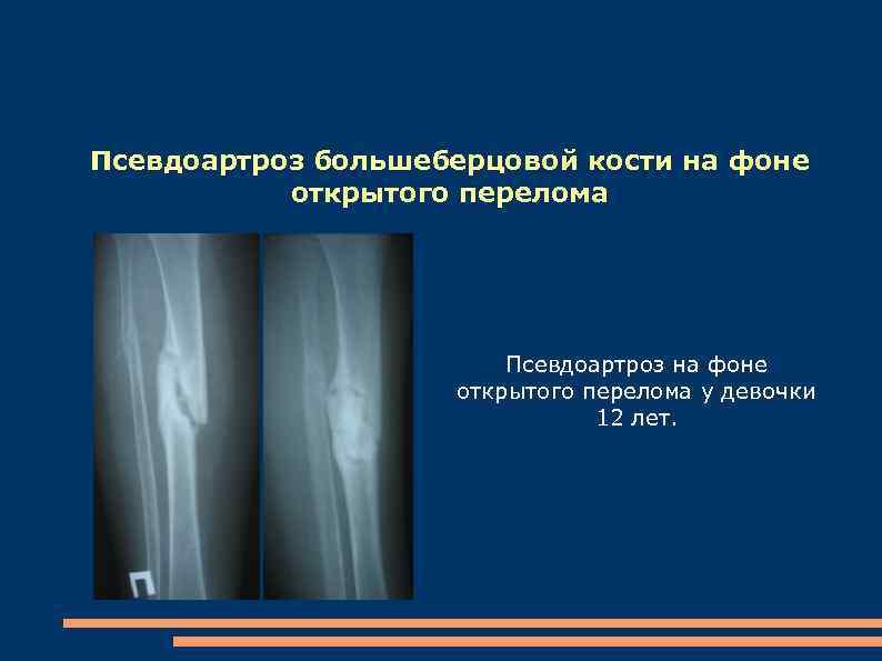Псевдоартроз большеберцовой кости на фоне открытого перелома Псевдоартроз на фоне открытого перелома у девочки
