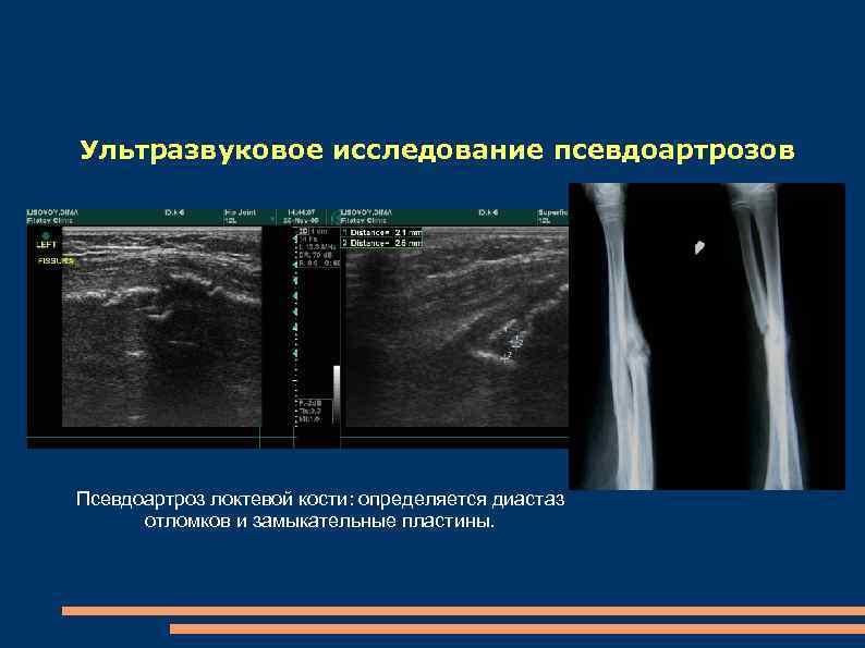 Ультразвуковое исследование псевдоартрозов Псевдоартроз локтевой кости: определяется диастаз отломков и замыкательные пластины.