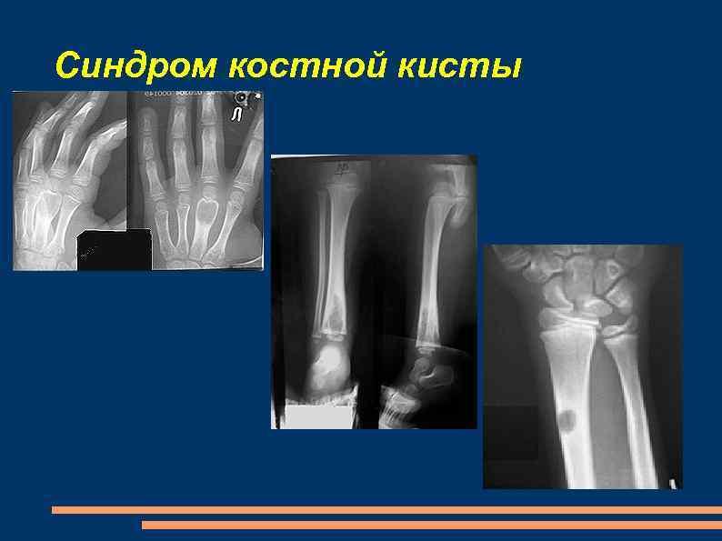 Синдром костной кисты