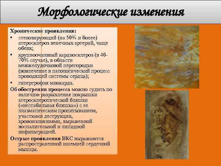Морфологические изменения Хронические проявления: • стенозирующий (на 50% и более) атеросклероз венечных артерий, чаще