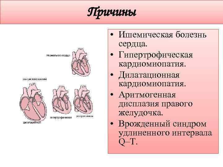 Причины • Ишемическая болезнь сердца. • Гипертрофическая кардиомиопатия. • Дилатационная кардиомиопатия. • Аритмогенная дисплазия