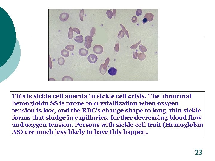 This is sickle cell anemia in sickle cell crisis. The abnormal hemoglobin SS is