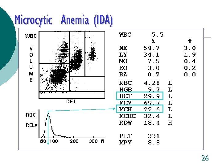 Microcytic Anemia (IDA) 26