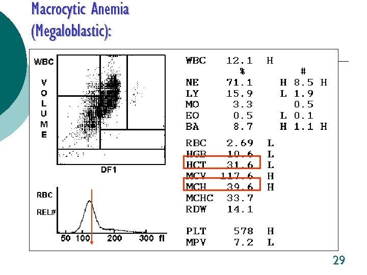 Macrocytic Anemia (Megaloblastic): 29