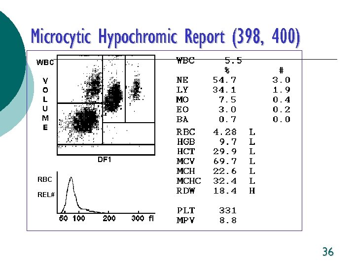 Microcytic Hypochromic Report (398, 400) 36