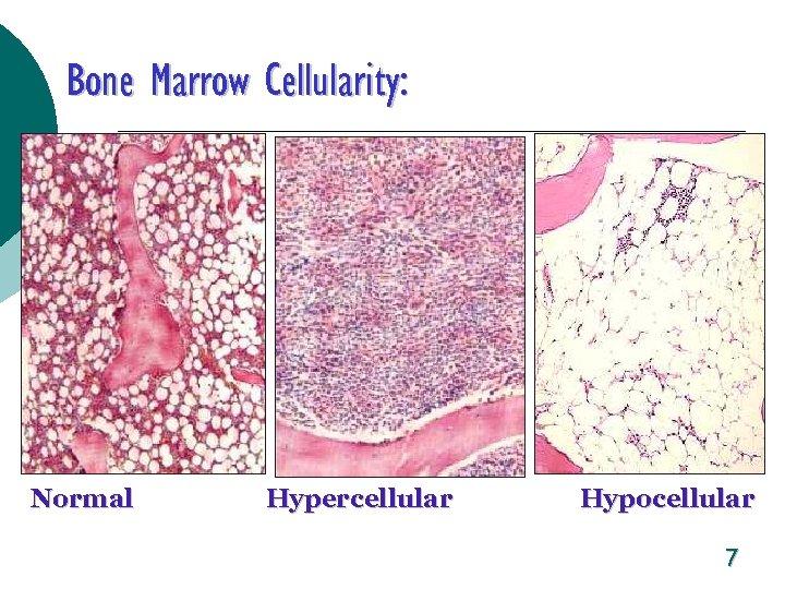 Bone Marrow Cellularity: Normal Hypercellular Hypocellular 7