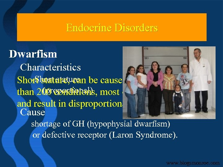 Endocrine Problems Endocrine Disorders Dwarfism Characteristics -Short stature, can be caused by any one