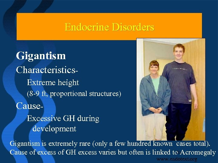 Endocrine Disorders Gigantism Characteristics. Extreme height (8 -9 ft, proportional structures) Cause. Excessive GH