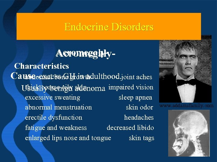 Endocrine Problems Endocrine Disorders Acromegaly. Characteristics Cause-excess GH in adulthood. joint aches abnormal bone