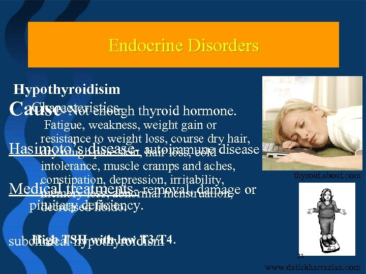 Endocrine Disorders Hypothyroidisim Characteristics. Cause- Not enough thyroid hormone. Fatigue, weakness, weight gain or