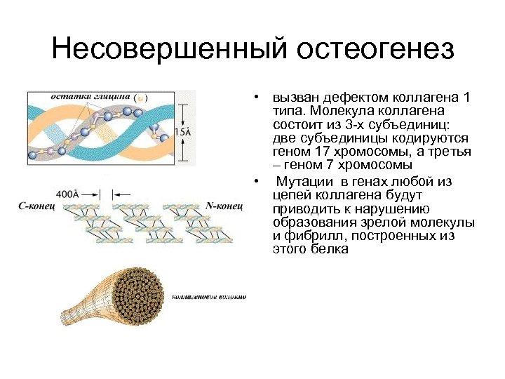 Несовершенный остеогенез • вызван дефектом коллагена 1 типа. Молекула коллагена состоит из 3 -х