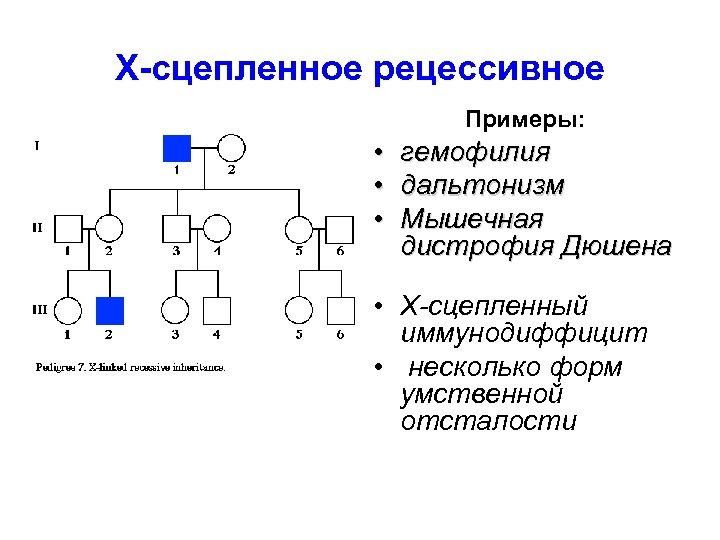 X-сцепленное рецессивное Примеры: • • • гемофилия дальтонизм Мышечная дистрофия Дюшена • Х-сцепленный иммунодиффицит
