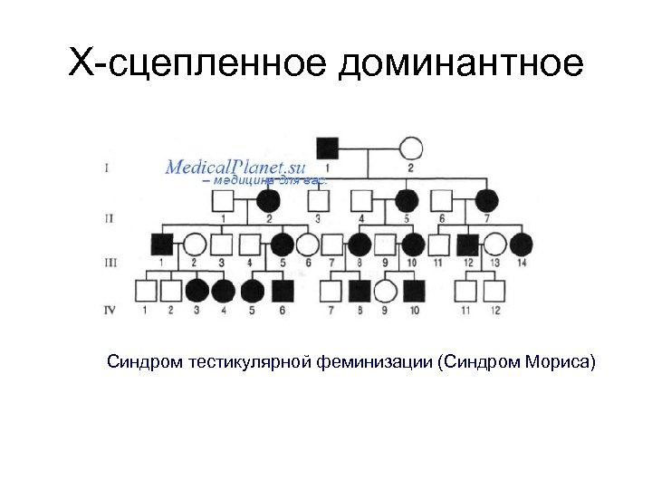 Х-сцепленное доминантное Синдром тестикулярной феминизации (Синдром Мориса)