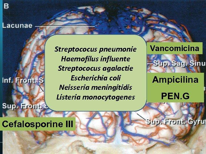 PACIENT Streptococus pneumonie Haemofilus influente Streptococus agalactie Escherichia coli Neisseria meningitidis Listeria monocytogenes Cefalosporine