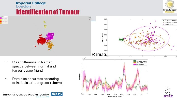 Identification of Tumour Raman • Clear difference in Raman spectra between normal and tumour