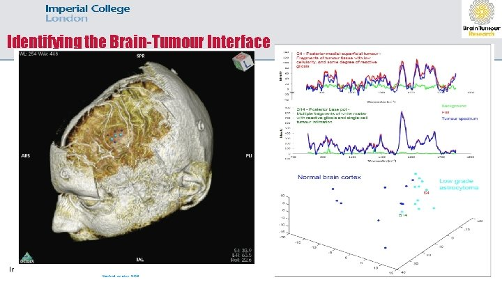 Identifying the Brain-Tumour Interface