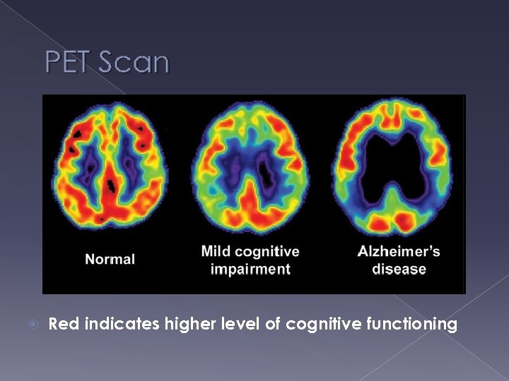 PET Scan Red indicates higher level of cognitive functioning