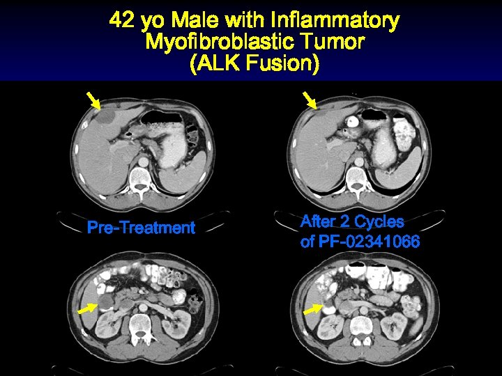 42 yo Male with Inflammatory Myofibroblastic Tumor (ALK Fusion) Pre-Treatment After 2 Cycles of