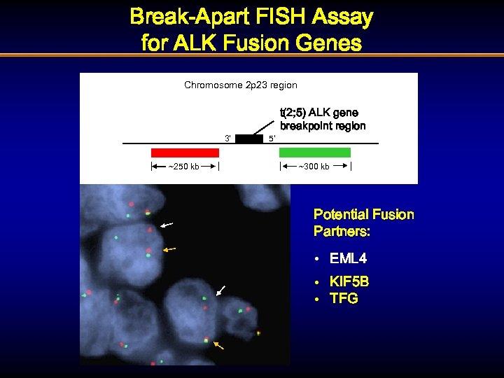 Break-Apart FISH Assay for ALK Fusion Genes Chromosome 2 p 23 region 3' ~250