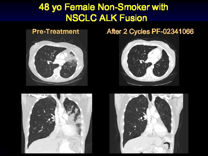 48 yo Female Non-Smoker with NSCLC ALK Fusion Pre-Treatment After 2 Cycles PF-02341066