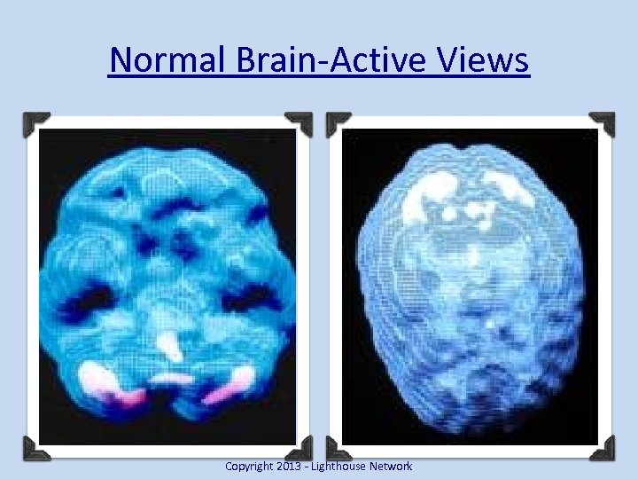Normal Brain-Active Views Copyright 2013 - Lighthouse Network