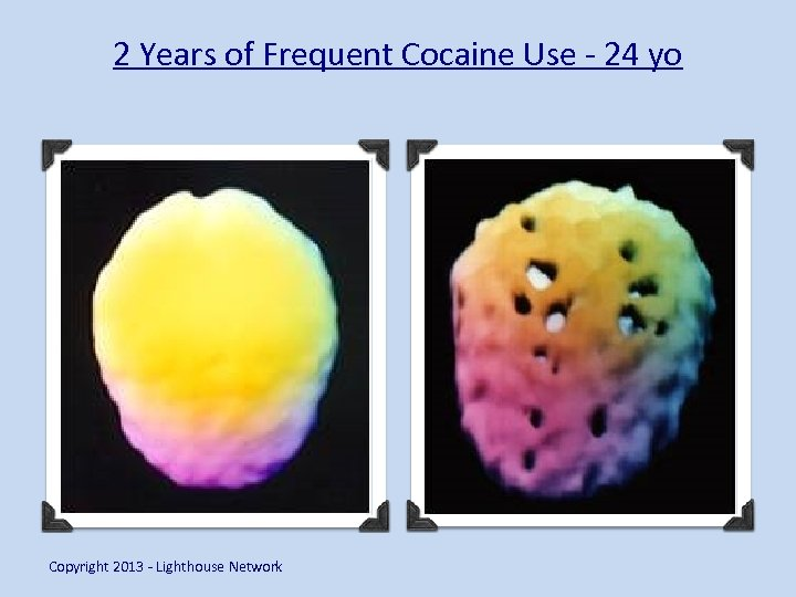 2 Years of Frequent Cocaine Use - 24 yo Copyright 2013 - Lighthouse Network