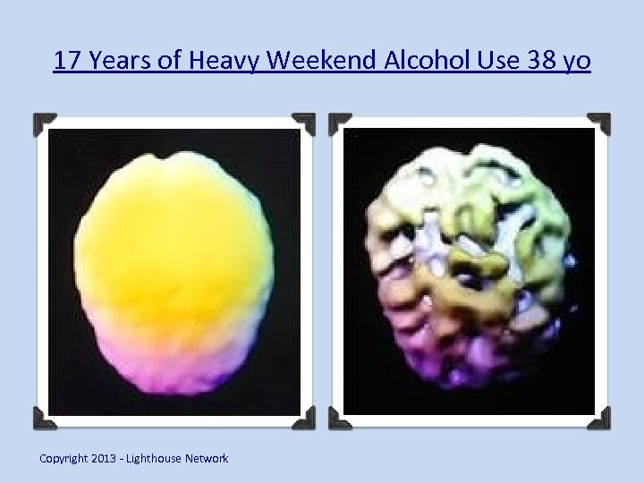 17 Years of Heavy Weekend Alcohol Use 38 yo Copyright 2013 - Lighthouse Network